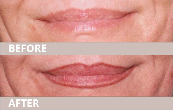 2_lips02