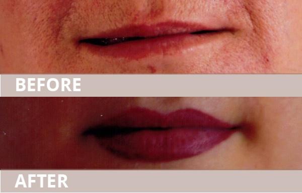 2_lips11