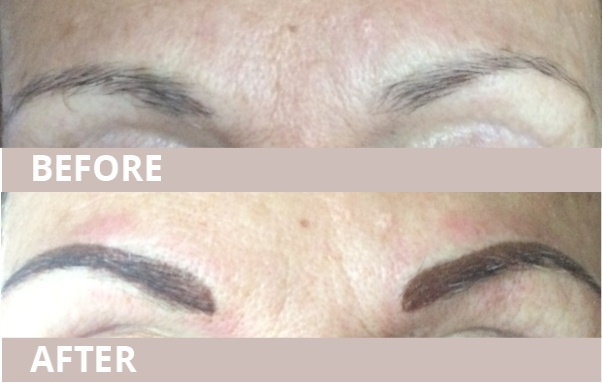 BEFORE AND AFTER BrowsA-2