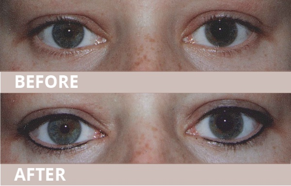 BEFORE AND AFTER EyelinerA