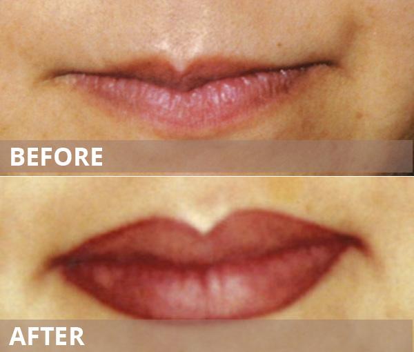 gallery-lips-102