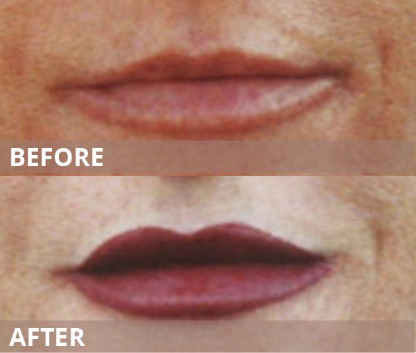 gallery-lips-103