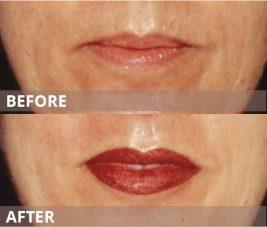 gallery-lips4