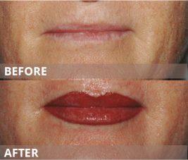 gallery-lips6
