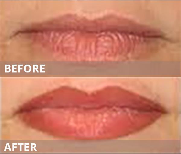 lips-gallery-latest