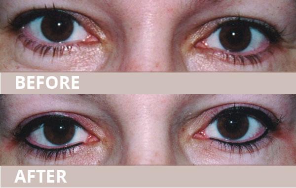 wub-new-eyeliner06