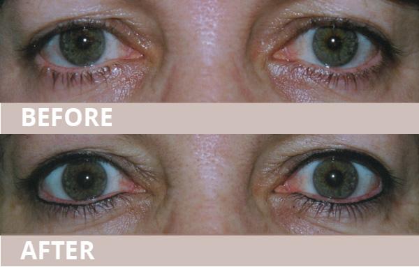 wub-new-eyeliner09