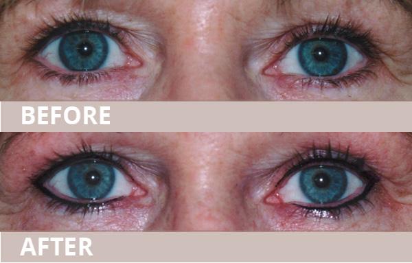 wub-new-eyeliner10