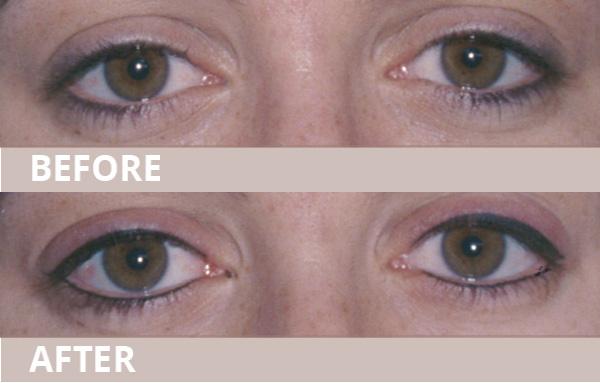 wub-new-eyeliner12