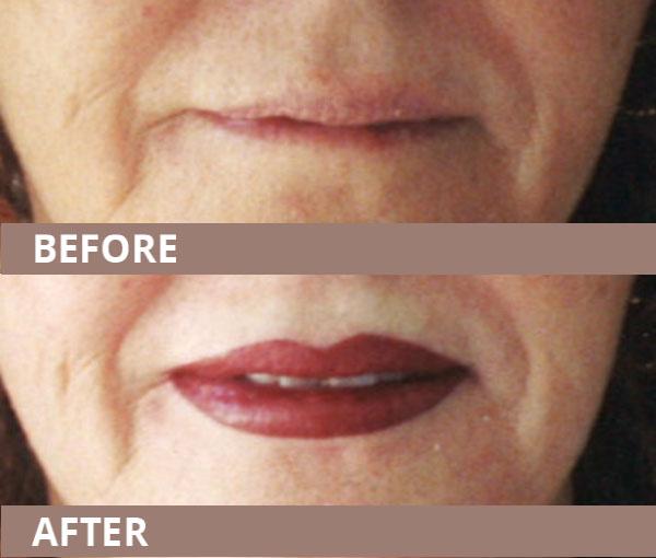 wub-new-lips03